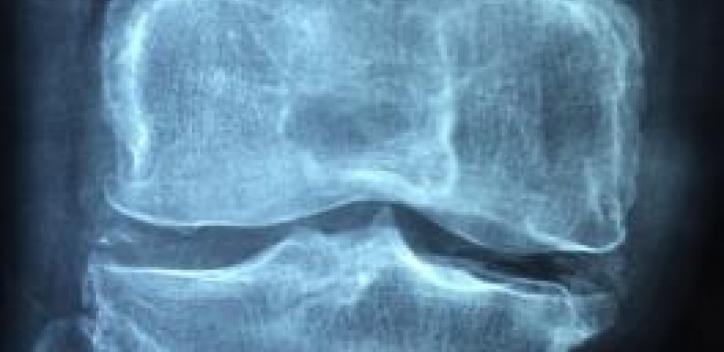 bone; knee